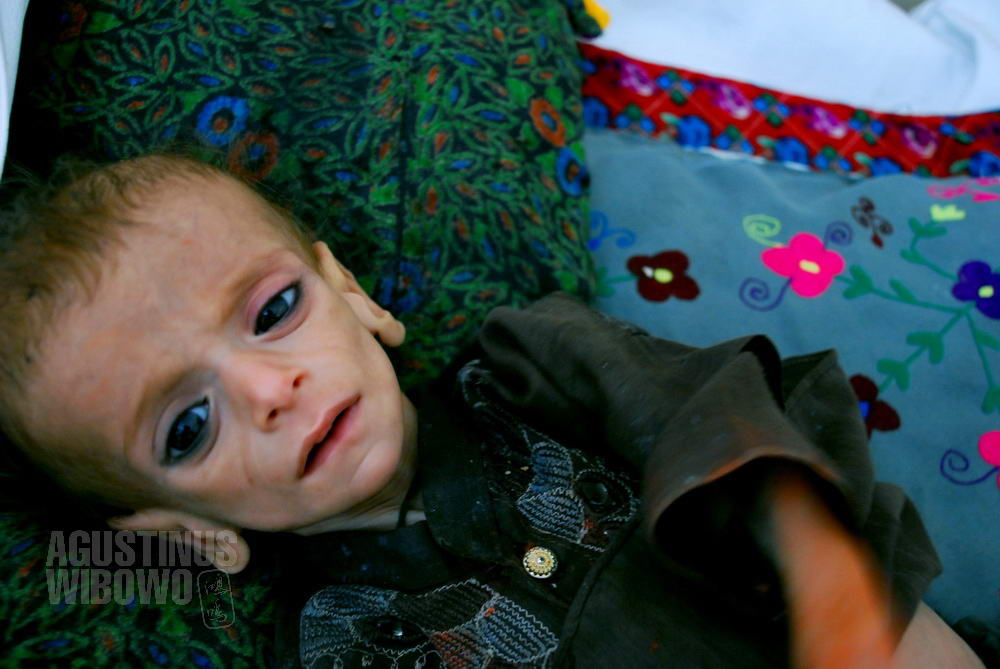 afghanistan-2008-herat-food-crisis-hospital-baby