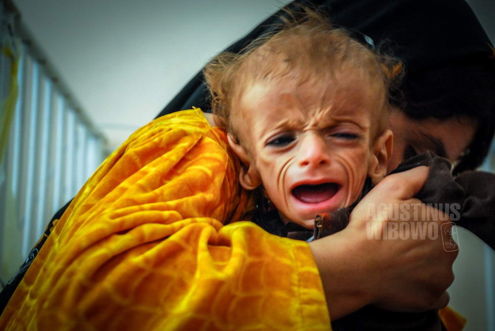 afghanistan-2008-herat-food-crisis-hospital-mother-baby-hand